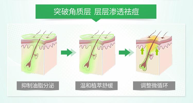 植物祛痘精华PC(1)_06.jpg